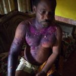 Angry Wife Pours Hot Water On Husband While He Was Asleep In Yenagoa (Photo)